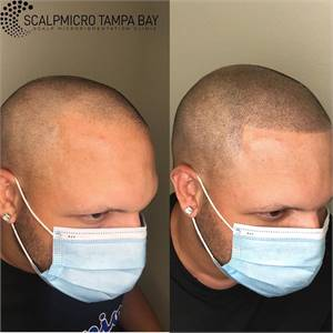 ScalpMicro Tampa Bay